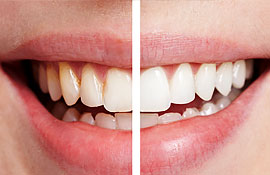 laser-teeth-whitening-featured