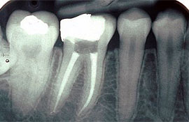service-root-canal